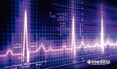 Presión arterial baja: electrocardiograma