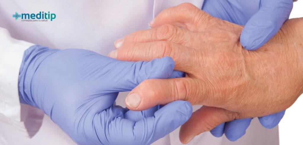 Tipos de artritis: factor reumatoide