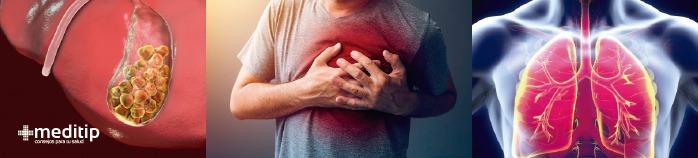 Dolor del hombro: otras causas como cálculos biliares, ataque cardíaco o neumonía