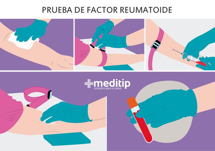 Factor reumatoide: análisis clínico