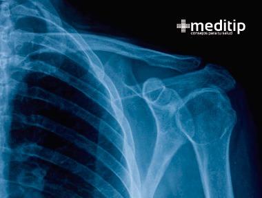 Fisioterapia de hombro: radiografía de hombro