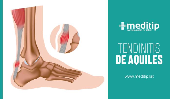 Heridas y lesiones en deportistas: tendinitis de Aquiles