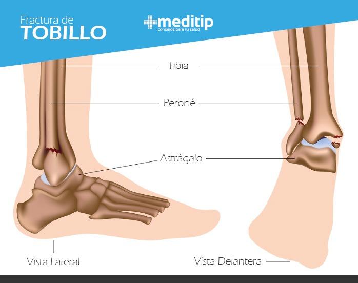 Dolor de tobillo: fractura