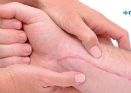 Qué es una cicatriz: proceso de formación, tipos y tratamiento
