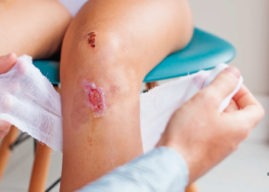 Complicaciones de las heridas