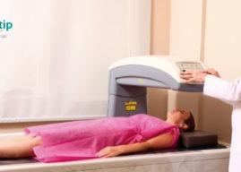 Densitometría ósea: definición y detección de enfermedades
