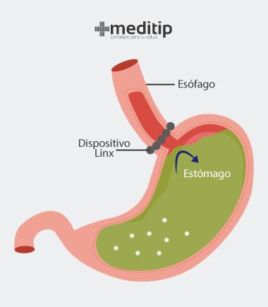 Reflujo gastroesofágico: implante magnético, dispositivo linx