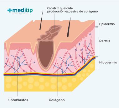 Cicatriz: proceso de formación de cicatrices