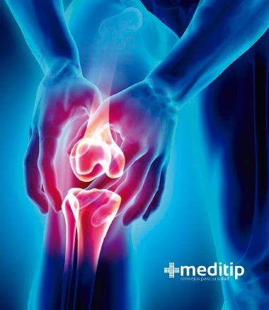 Causas comunes del dolor de rodilla: Condromalacia rotuliana