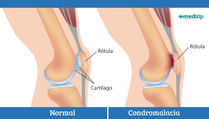 rodilla de corredor: desgaste de la rótula (patela)