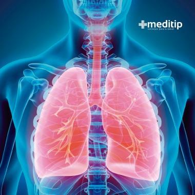 Síntomas de bronquitis: pulmones
