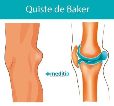 Quiste de Baker: inflamación detrás de la rodilla