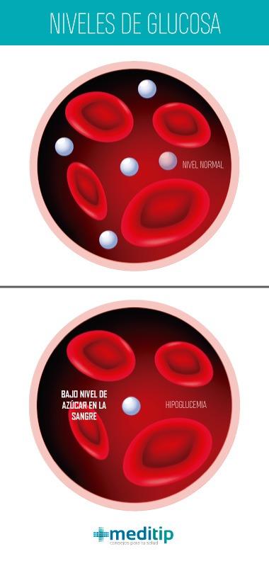 Causas de hipoglucemia: niveles de glucosa en la sangre