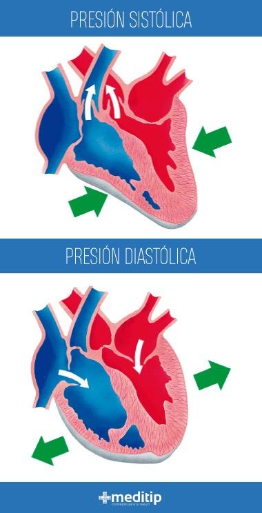 Presión arterial baja: presión sistólica y presión diastólica