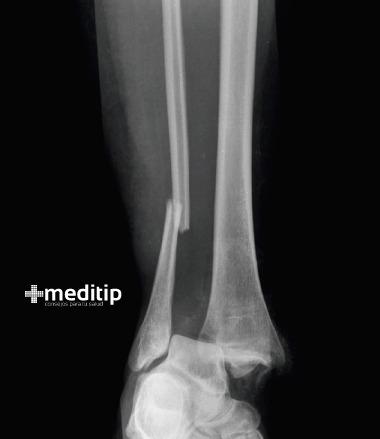 Densitometría ósea: fractura
