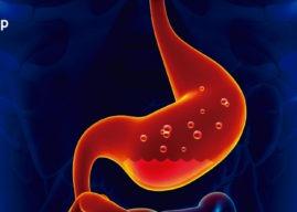 Reflujo gastroesofágico: causas, diagnóstico y tratamiento