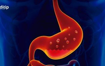 Reflujo ácido: reflujo gastroesofágico