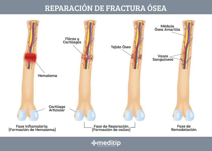 Fracturas: fases de la curación de fracturas