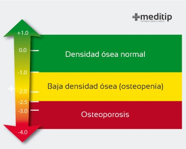 Densitometría ósea: resultados y trastornos
