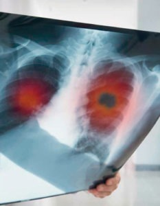 Diagnóstico de cáncer