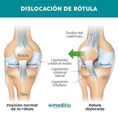 Causas de dolor de rodilla: dislocación de rótula