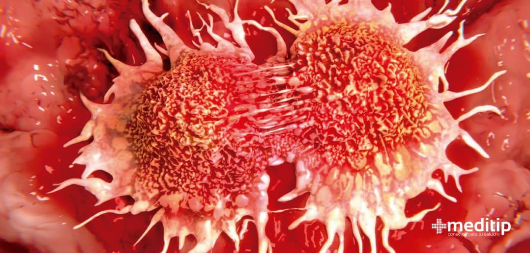 Cómo se extiende el cáncer
