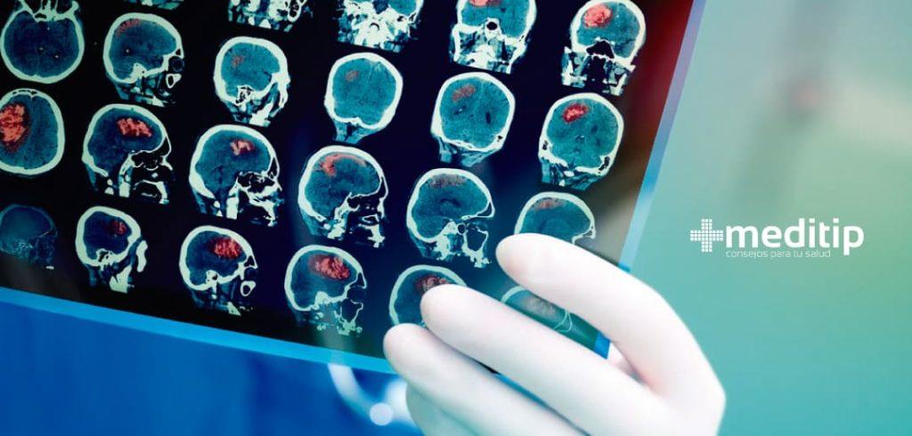Hidrocefalia de presión normal: resonancia magnética y tomografía