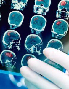 Hidrocefalia de presión normal: radiografías