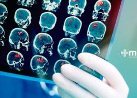 Hidrocefalia de presión normal: un desafío diagnóstico neurológico