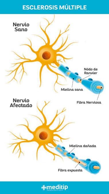 Causas de la esclerosis múltiple: daño en la mielina