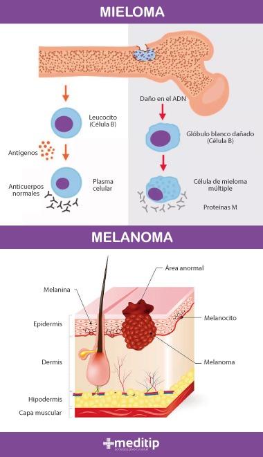 Tipos de cáncer: mieloma y melanoma