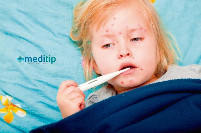 Primeros síntomas del sarampión: brote de sarampión