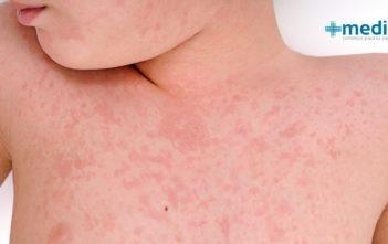 primeros síntomas del sarampión
