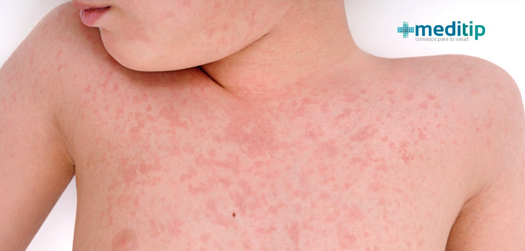 primeros sintomas del sarampion