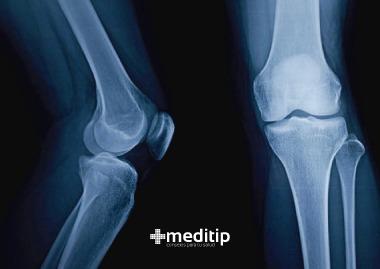 Dolor de rodilla al flexionar: radiografía de rodilla
