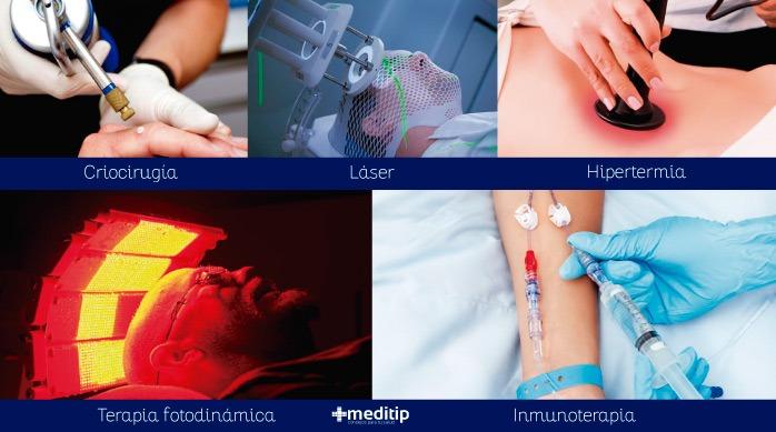 Tratamiento para el cáncer: tipos de terapias para el manejo del cáncer