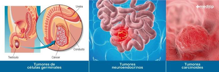 Tipos de cáncer: tumores