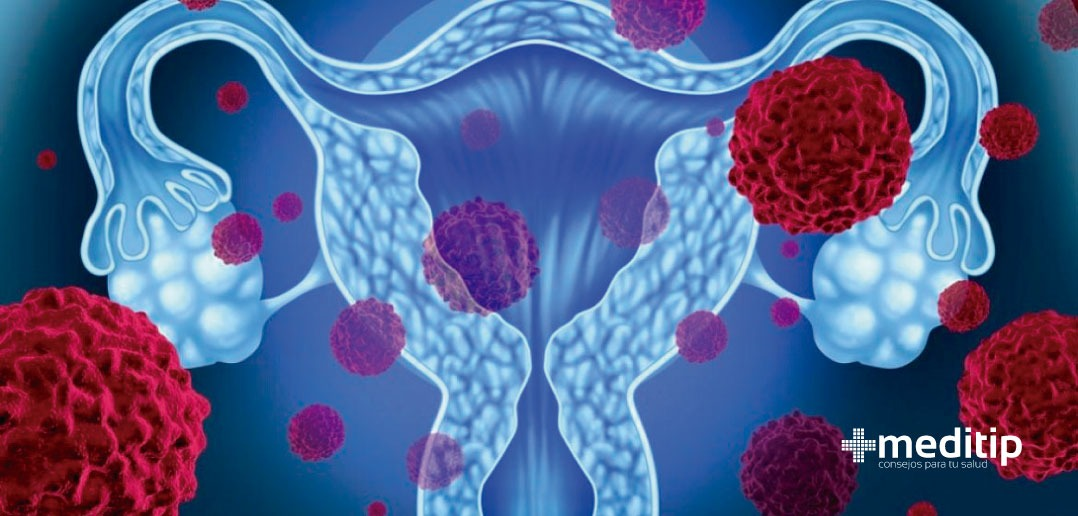 VPH: virus del papiloma humano