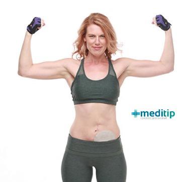 Urostomía: ejercicio con urostomía