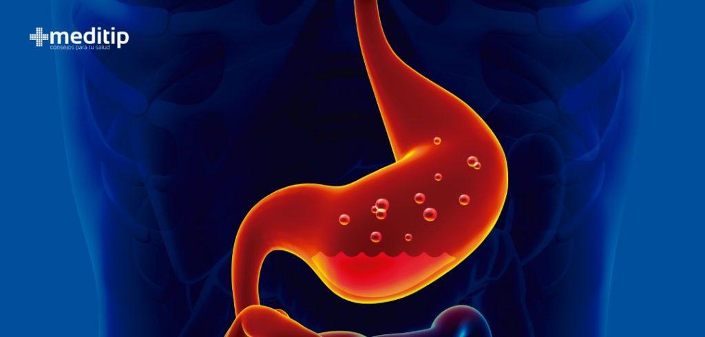 Gastritis crónica: acidez estomacal