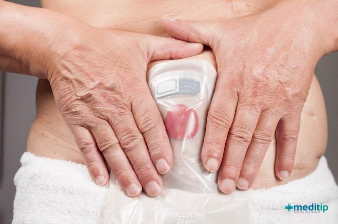 Diez mitos sobre las ostomías: cáncer