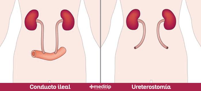 Urostomía: tipos de cirugía de urostomía