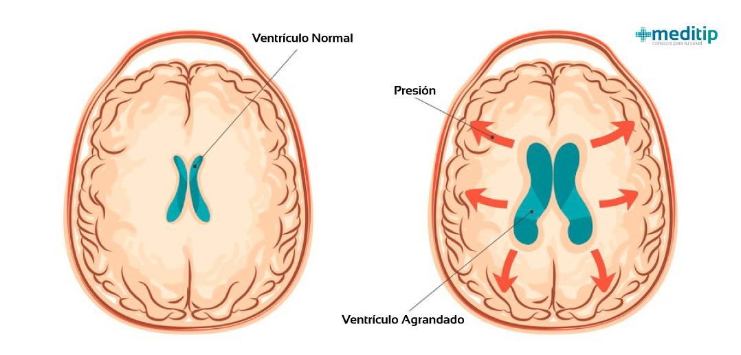 Hidrocefalia en los ventrículos