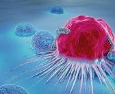 Recurrencia del cáncer: por qué el cáncer regresa