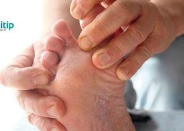 Causas del pie de atleta: contagio y tratamiento