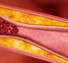 Causas de la aterosclerosis: síntomas y tratamiento