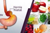 Dieta de la hernia hiatal: hernia hiatal, hernia de hiato