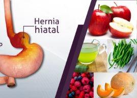 Dieta de la hernia hiatal: una alternativa para aliviar el reflujo gastroesofágico