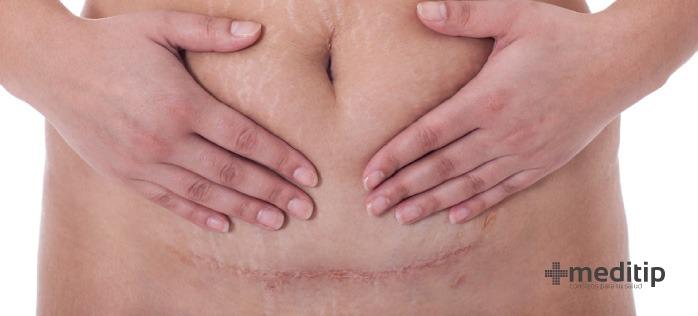 Tecnologías para el manejo de heridas por cesárea: cicatriz por cesárea