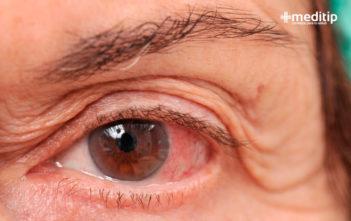 Ojo rojo por glaucoma